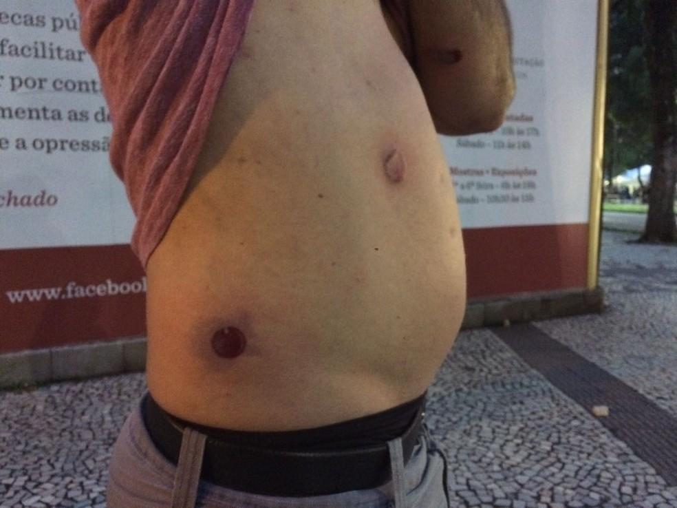 Homem é ferido por balas de borracha durante protesto na Cinelândia, Rio (Foto: Matheus Rodrigues/G1)