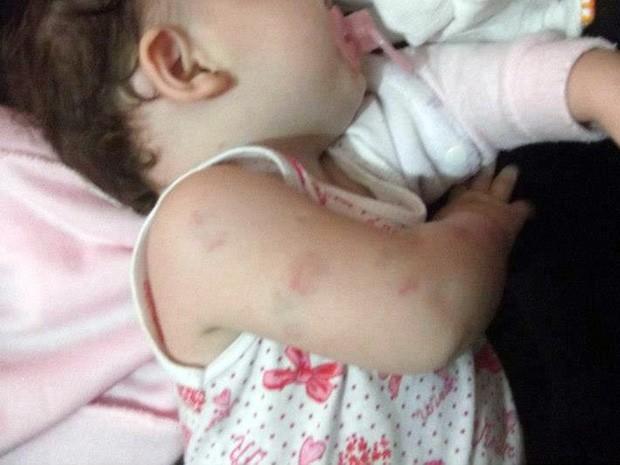 Menina ferida está traumatizada (Foto: David Gomes/Arquivo Pessoal)