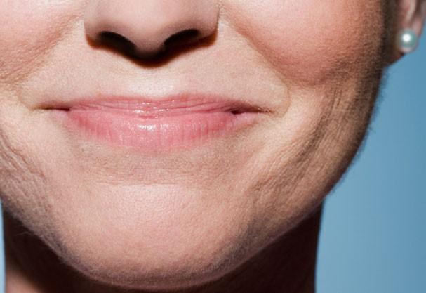Manteiga de karité é um dos melhores remédios contra lábios secos (Foto: Think Stock)