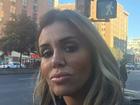 Renata Banhara perdeu parte dos movimentos do rosto, diz assessoria