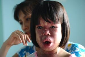 A menina Nguyen Thi Hong Van, de 11 anos, suspeita de contaminação com o agente laranja, e sua mãe, Nguyen Thi Luu, em Danang (Foto: Hoang Dinh Nam / AFP)