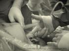 Bebê que segura dedo de médico ao nascer vira sensação na web
