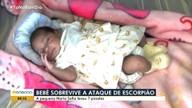 Garotinha recém-nascida sobrevive a picadas de escorpião