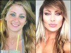 Luciane Hopers sobre plásticas: 'Já gastei R$300 mil'