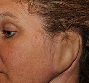 Orelha implantada EUA (Foto: Hospital Johns Hopkins/Divulgação)