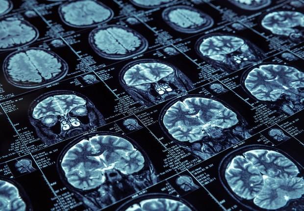 Tomografia do cérebro com contraste visão lateral (Foto: Thinkstock)