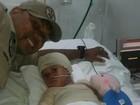 Criança tem cinco dedos amputados após incêndio em casa em Cuiabá