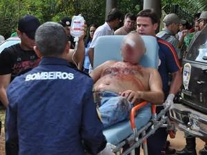Dois irmãos ficaram feridos durante a tentativa de assalto (Foto: Selmo Melo / Arquivo Pessoal)