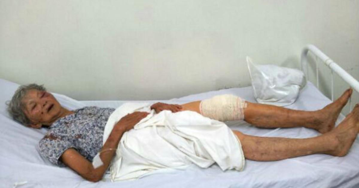 'Bateu muito', diz idoso sobre ladrão que o agrediu durante assalto - Globo.com