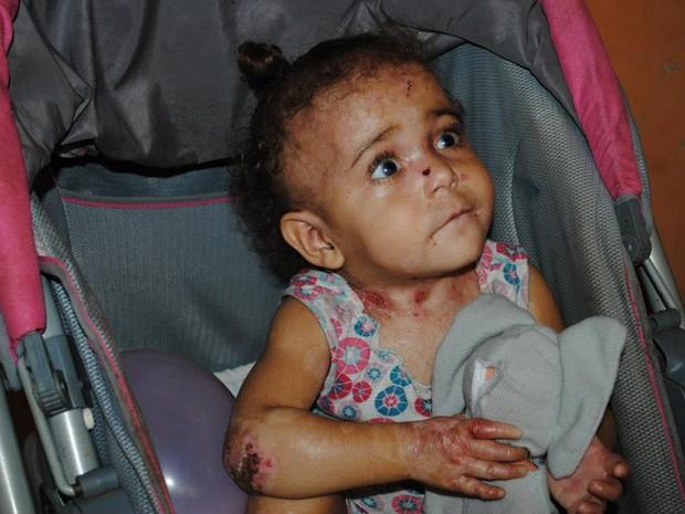 Menina de dois anos sofre com doença rara e sem cura (Foto: Roncalli Marcos/Divulgação)