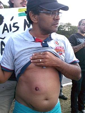 protesto torcedor tiro de borracha Mané Garrincha (Foto: Fabricio Marques)