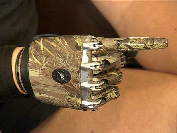 Mão biônica (Foto: BBC )