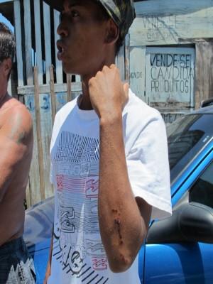 Ferimentos foram causado pelo choque de cerca de 14 mil volts (Foto: Silvio Muniz/G1)