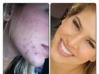Ex-BBB Adriana mostra antes e depois de sua pele