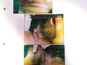 Marcas de asfixia no pescoço de Fabiana Caggiano (Foto: Reprodução/Henrique Dovalle/Inter TV Cabugi)