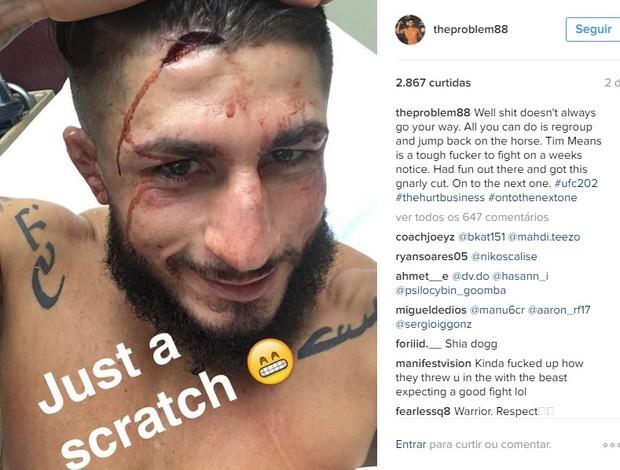 BLOG: Imagem forte: nocauteado no UFC 202, lutador mostra corte impressionante
