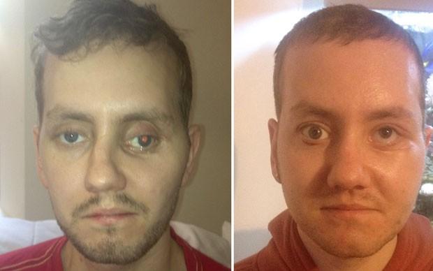 Fotos mostram retrato de Stephen Power antes da reconstrução facial  (à esquerda) e após a cirurgia (Foto: ABMU Health Board/AFP)