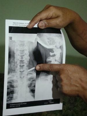 Raio-x revelou metal alojado há 37 anos no ombro da vítima (Foto: Natália de Oliveira/G1)