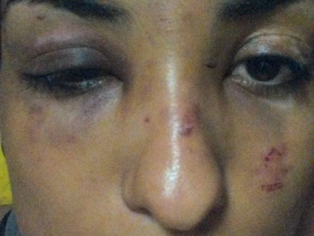 O rosto da universitária Rainah Ramos Rabelo após sofrer agressão de ladrão em Brasília; crime aconteceu em frente a escola pública na 308 Sul (Foto: Rainah Ramos/Arquivo Pessoal)