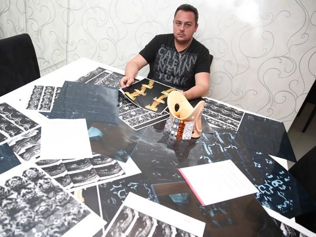 Gabriel Quedas Dottavio sofreu acidente um tobogã do Parque dos Laranjais (Foto: Fabio Tito/G1)