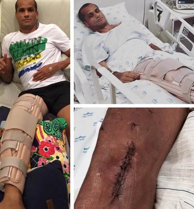 Rivaldo recuperação cirurgia joelho direito (Foto: Reprodução / Instagram)