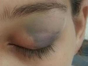 Grávida ficou com olho roxo após cabeçada do marido (Foto: Polícia Militar/ Divulgação)