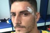 """Com pontos no rosto, Rafael posta foto e tranquiliza torcida: """"Vida de goleiro"""""""