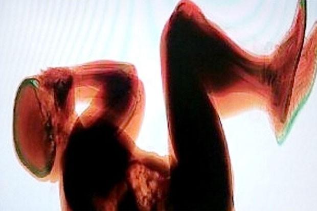 Em agosto deste ano, um homem foi encontrado dormindo na esteira de bagagens do aeroporto Fiumicino, em Roma, na Itália, após funcionários que inspecionavam as malas perceberem um corpo no aparelho de raio-X. (Foto: Reprodução)
