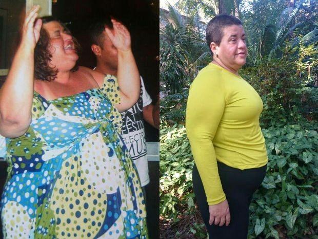Dos 181 quilos que pesava há mais de 10 anos, Raquel perdeu pelo menos 80 (Foto: Arquivo pessoal e Ana Paula Yabiku/G1)