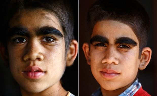 O garoto Niraj Budhathoki, de 12 anos, também passou por tratamento para aliviar sintomas de síndrome. (Foto: Reuters/Navesh Chitrakar)
