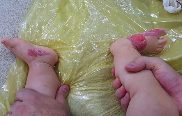 Bebê de 1 ano sofreu queimaduras de segundo grau nos dois pés (Foto: Fernanda Aguiar/Arquivo Pessoal)