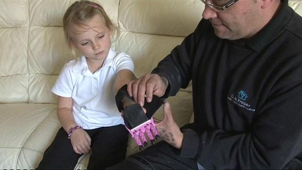Hayley nasceu com um problema de saúde congênito na mão esquerda que a deixou sem dedos. (Foto: BBC)
