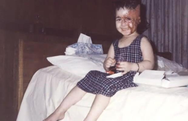 Após o acidente, quando tinha dois anos, Basma teve 40% de seu rosto queimado (Foto: Arquivo Pessoal)