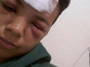Jovem ficou gravente ferida após acidente em São Carlos (Foto: Larissa Candido)