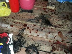 Vítima recebeu golpes de arma branca e teve os cabelos cortados (Foto: Divulgação/PM AP)