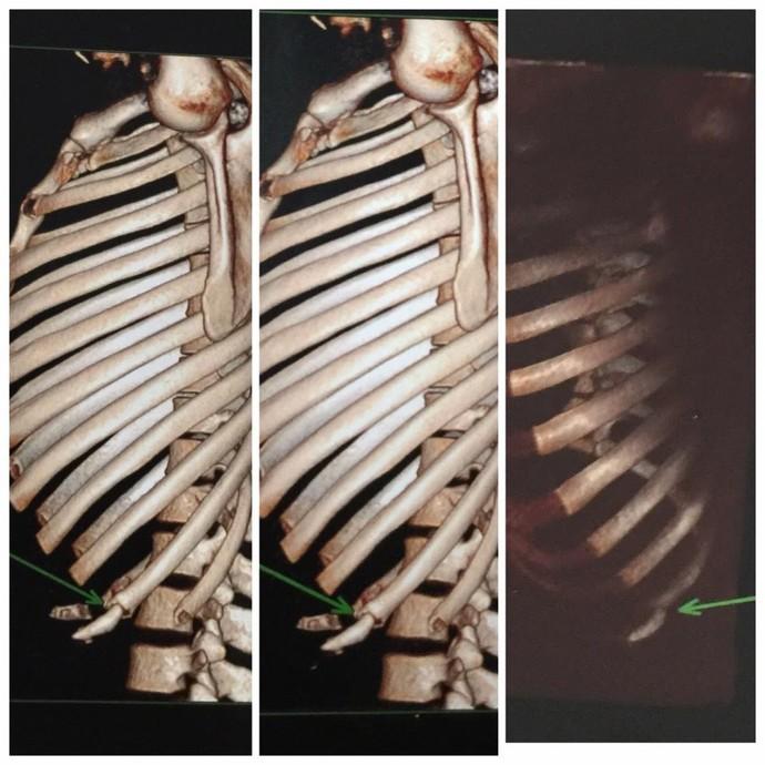 Exame de costela de José Aldo (Foto: divulgação)