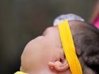 Números de microcefalia não alteram em uma semana no Sertão de PE