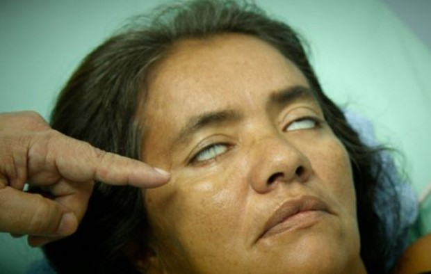 Esta mulher está com os olhos paralisados e não consegue piscar  (Foto: BBC)