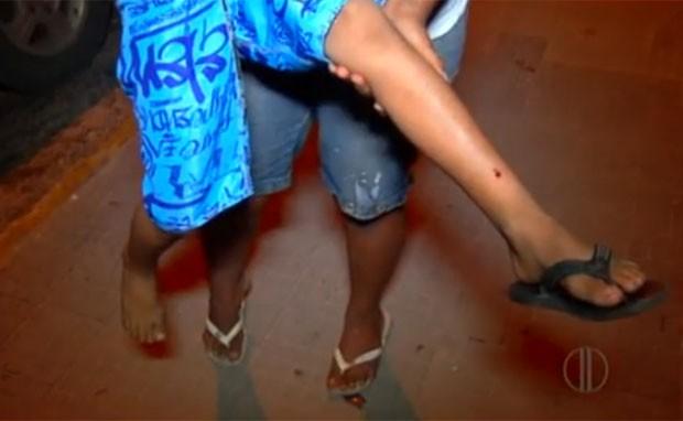 Criança leva tiro na perna em parque de diversões em Natal (Foto: Reprodução/Inter TV Cabugi)