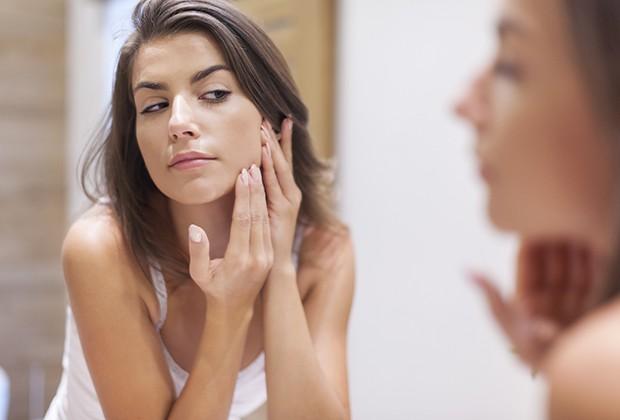 Desequílibrio hormonal, estresse e ansiedade estão entre as causas da acne após a puberdade (Foto: Thinkstock)