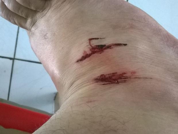 Vítima ficou com ferimento no pé após ser mordida por cachorro. (Foto: Arquivo pessoal/ Luzia do Carmo Bruno)