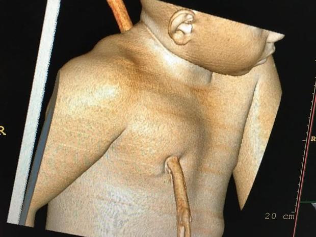 Imagem da tomografia computadorizada mostra estaca atravessada no tronco da criança (Foto: Divulgação/HUT)