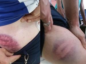 Jornalista Bernardo Tabak mostra os hematomas no corpo sofridos com a agressão dos guardas municipais (Foto: Victor do Espírito Santo Bisneto / Arquivo Pessoal)