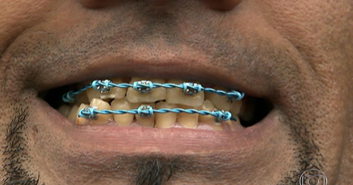 8ef0aa973 Bem Estar - Aparelho dentário irregular pode causar até perda de dente