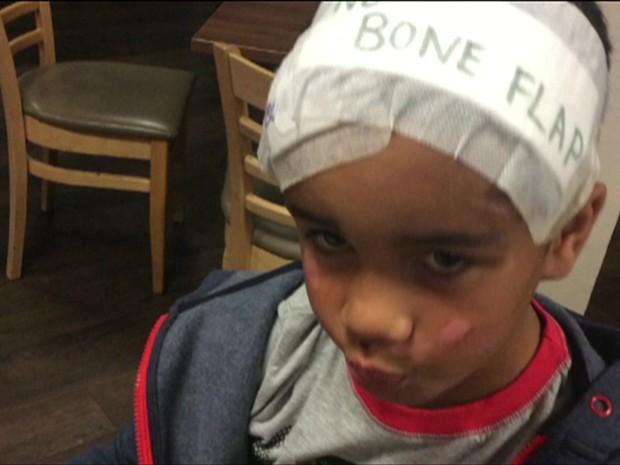 Médicos removeram uma parte de seu crânio e a guardaram dentro de seu barriga (Foto: Reprodução/BBC)