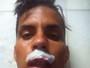 IMAGEM FORTE: Iuri Pimentel leva 10 pontos no lábio após cotovelada