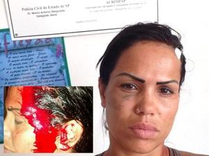 Mc Sexy foi agredida pelo namorado (Foto: Arquivo Pessoal/Mc Sexy)