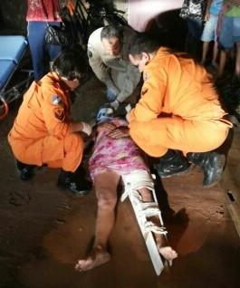 Uma das pernas da vítima sofreu fratura exposta (Foto: Divulgação/ Débora Menezes)
