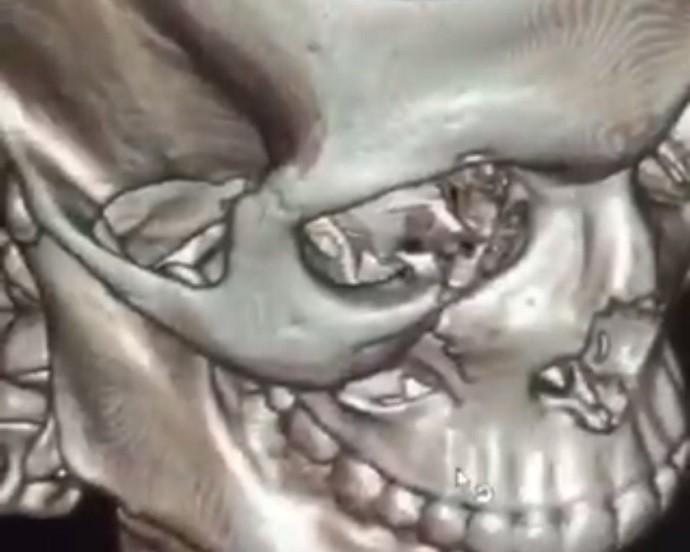 """BLOG: Erick Silva mostra fratura na face e exalta Luan Chagas: """"Quebramos nossos ossos"""""""
