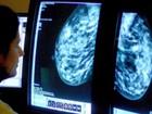 Cientistas desenvolvem exame para sete tipos de câncer de mama